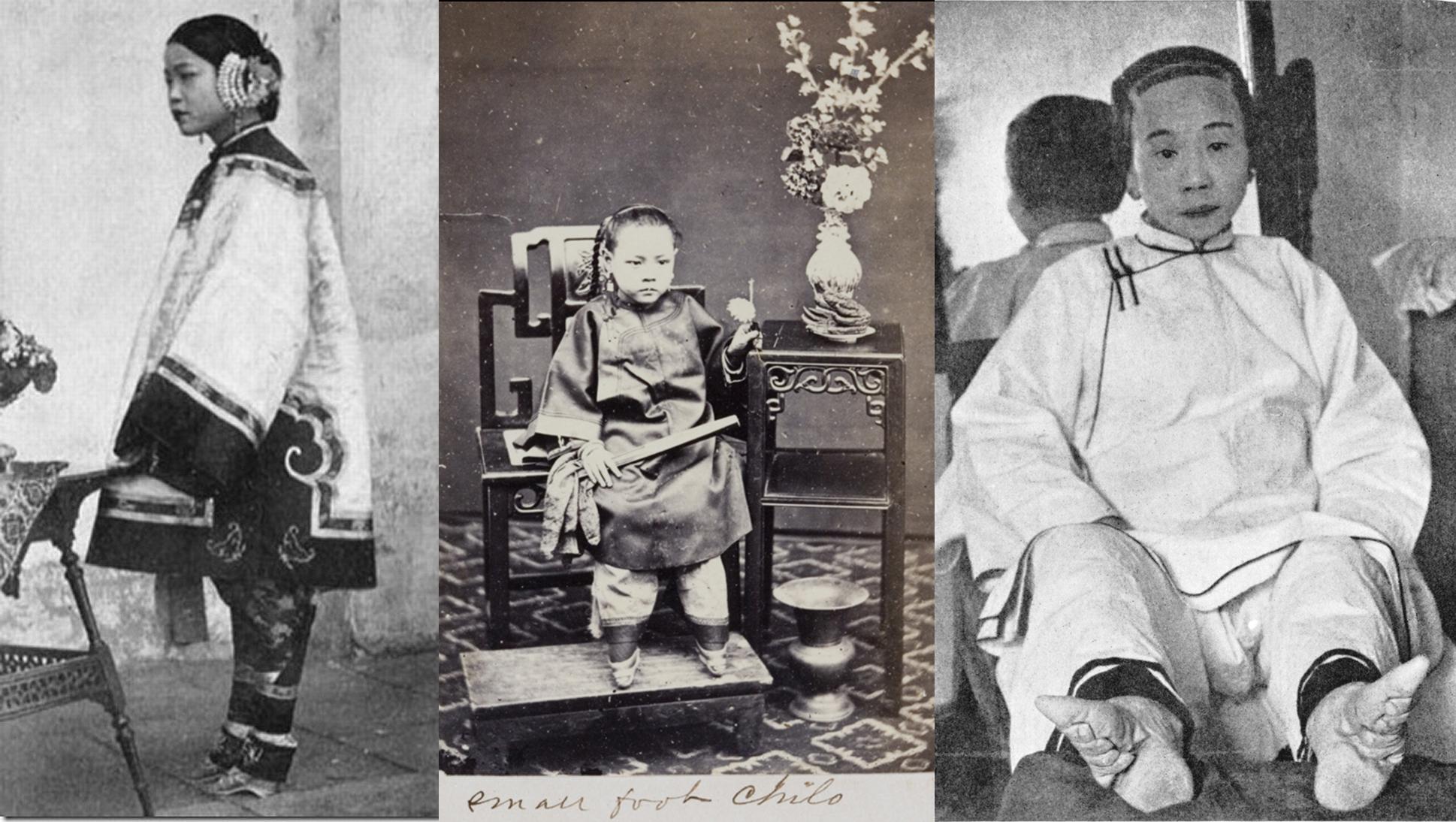Жертвы красоты: китайские девушки со «стопой-лотосом»