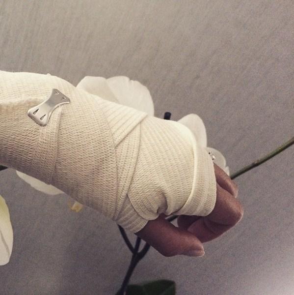 Алекса получила травму руки.