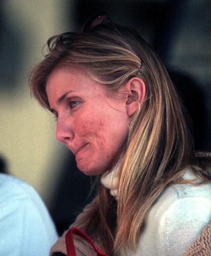 Камерон Диас (43) тоже страдала от акне