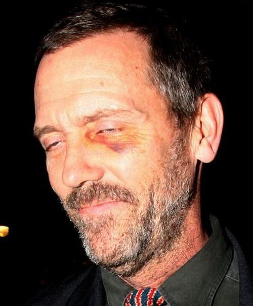 У Хью Лори (56) выдался неудачный вечер