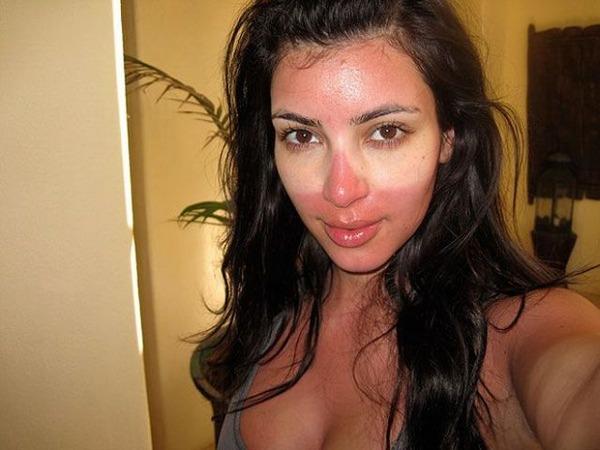 Ким Кардашьян (35) обгорела на солнце и сделала селфи - самокритично