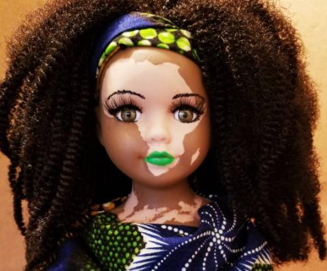 куклы с витилиго