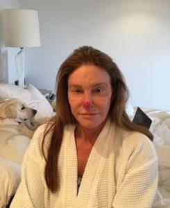Кейтлин Дженнер показала последствия рака кожи. Что делать, чтобы с тобой такого не случилось
