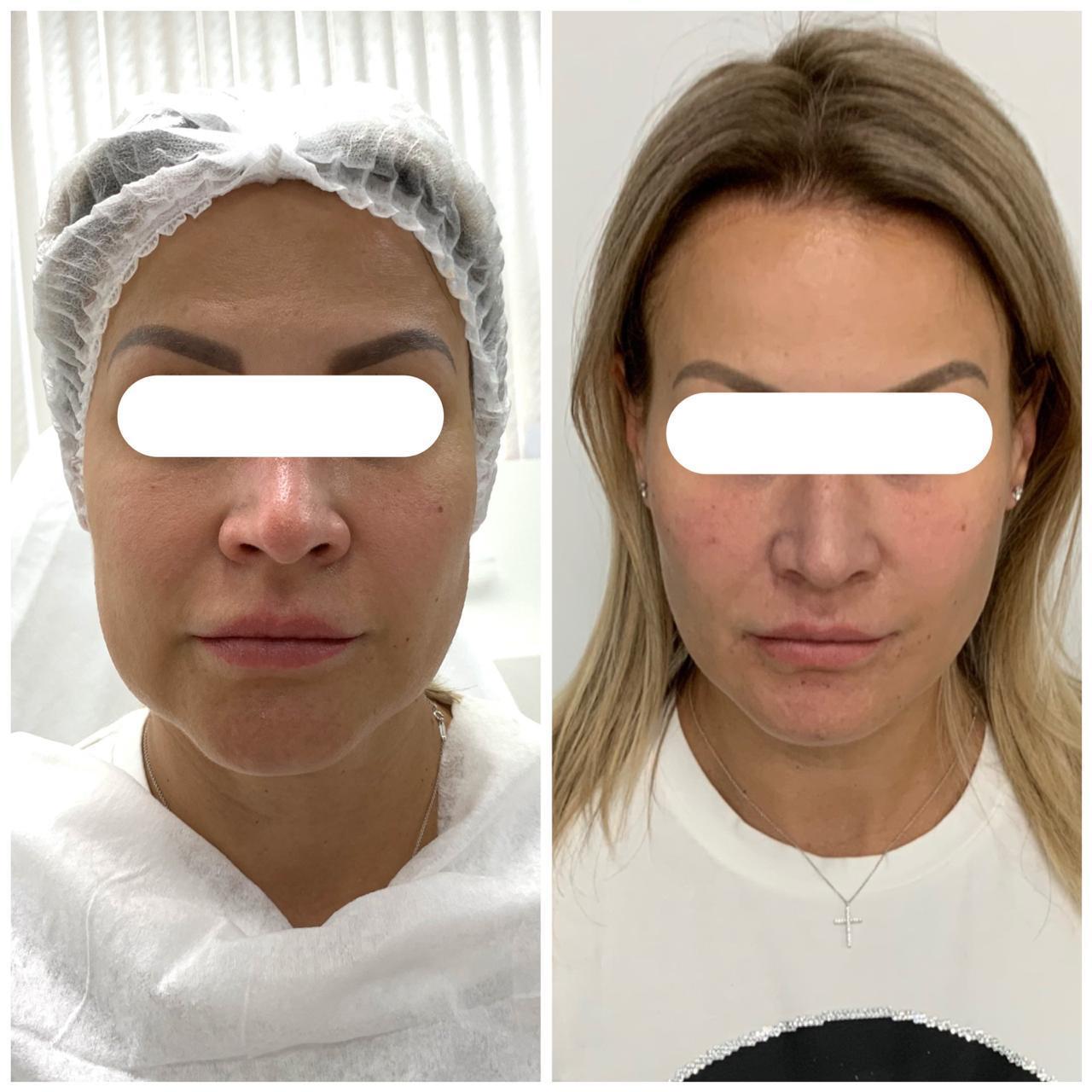 Результат до и после процедуры. Фото: клиники Ольги Мороз